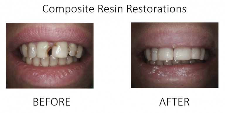 Composite Resin Restorations