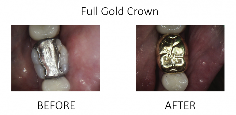 Full Gold Crown