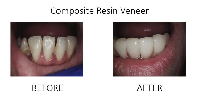 Composite Resin Veneer